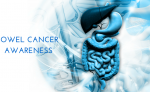View Bowel Cancer – The signs
